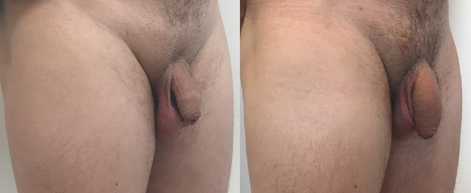 zwiększony penisa przez przedłużony przed i po)